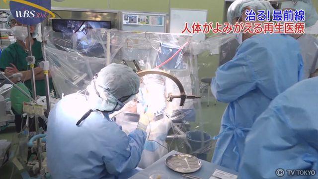 """【治る!最前線】広がる""""再生医療""""の可能性"""