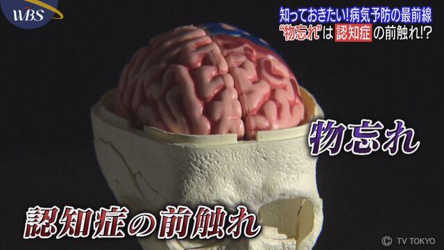 知っておきたい!病気予防の最前線 第5回「認知症」