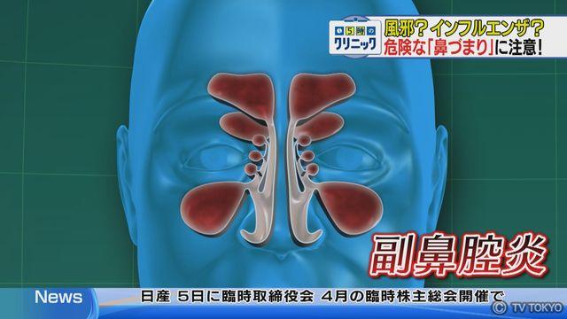 風邪?インフルエンザ? 危険な「鼻づまり」に注意!