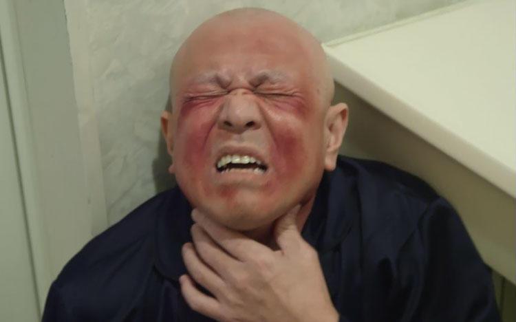 アニサキス・アレルギーの恐怖! 20〜30分でショック死してしまう可能 ...